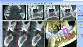 3D IMPLANT PLANNING