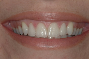 AFTER COSMETIC GUM CONTOURING & 4 NEW VENEERS