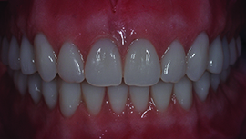 UPPER AND LOWER BEAUTIFUL FUNCTIONAL IMPLANT RETAINED DENTURES LOCATOR