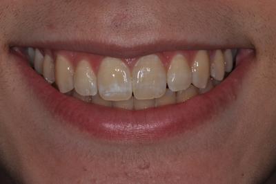 White Spots Before Treatment