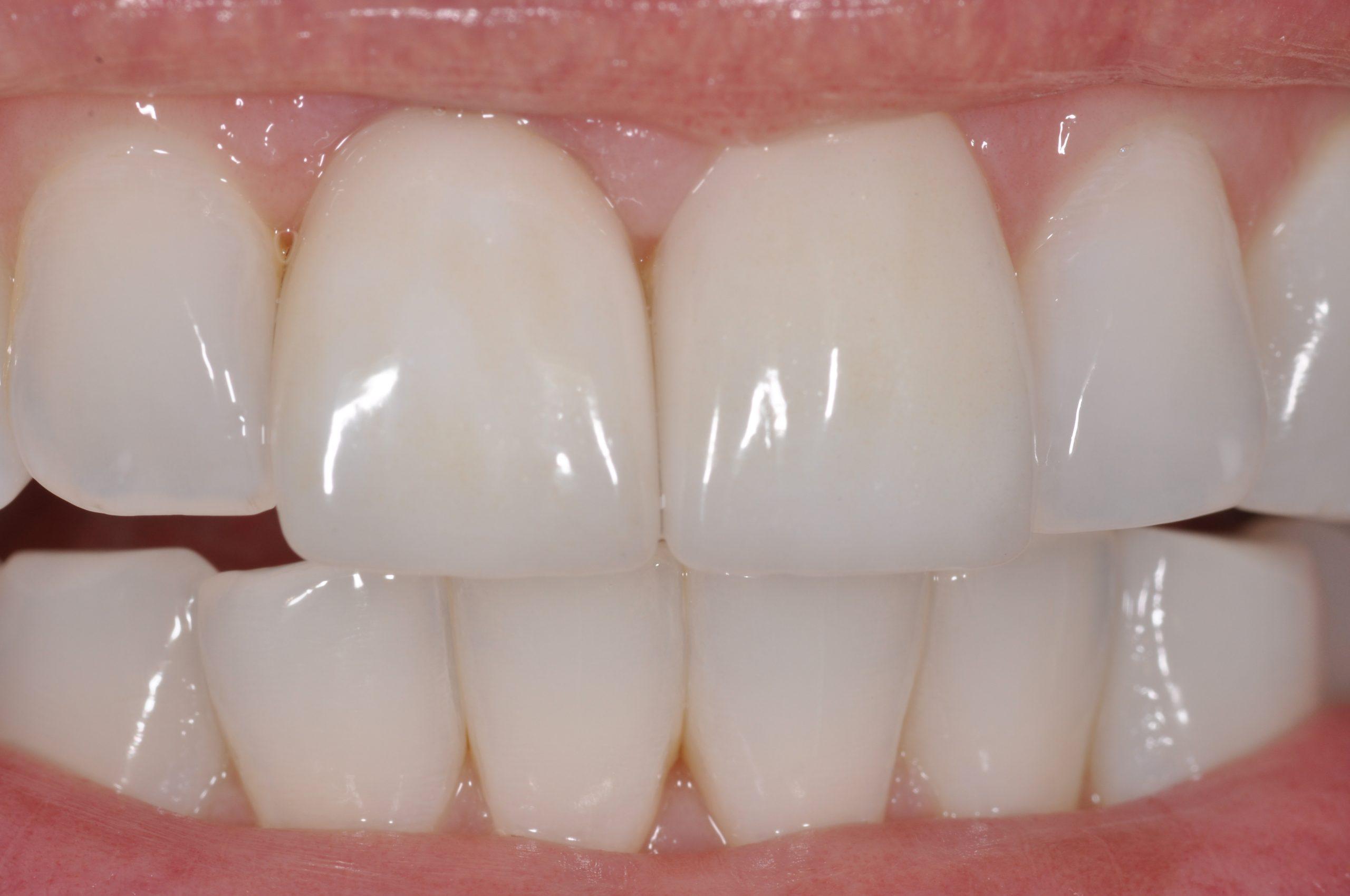 Dental Implant Finals
