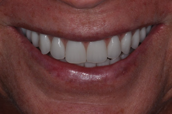 Upper and Lower AFTER Hybridge 2 – teeth only