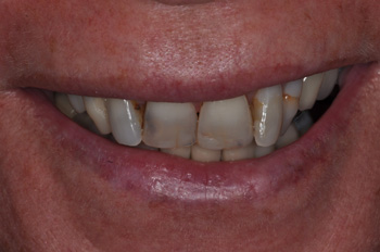 Upper and Lower BEFORE Hybridge 2 – teeth only