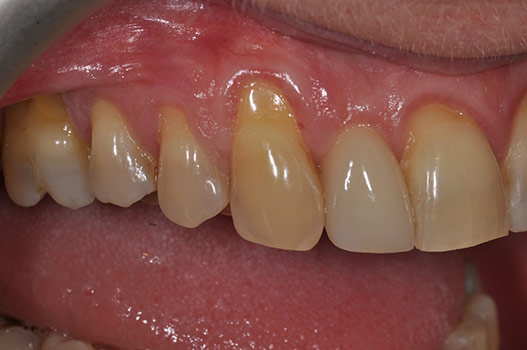 GUM RECESSION BEFORE TREATMENT NEEDING GUM TISSUE GRAFTING