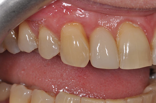 12 WEEKS AFTER GUM TISSUE GRAFTING BEAUTIFUL RESULT, MORE RESISTANT TO FURTHER RECESSION