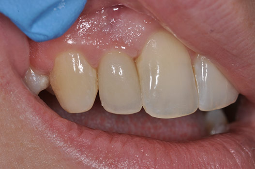 PHOTO AFTER BLOCK BONE GRAFTING AND FINAL RESTORATION ON DENTAL IMPLANT