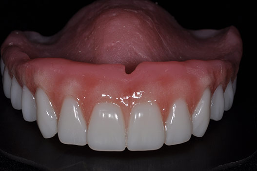 CUSTOM COSMETIC DENTURE