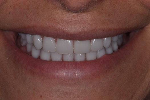 AFTER PREMIUM GRADE MAKEOVER COSMETIC DENTURES