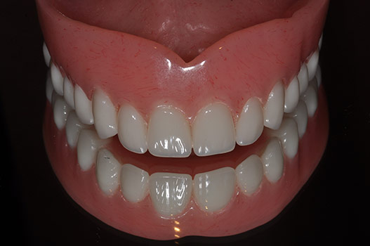 LOW COST ENTRY LEVEL DENTURES
