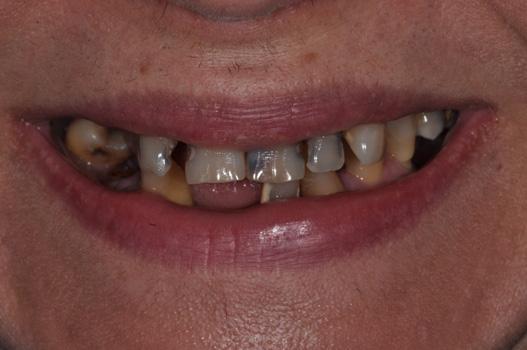 Cosmetic Denture BEFORE