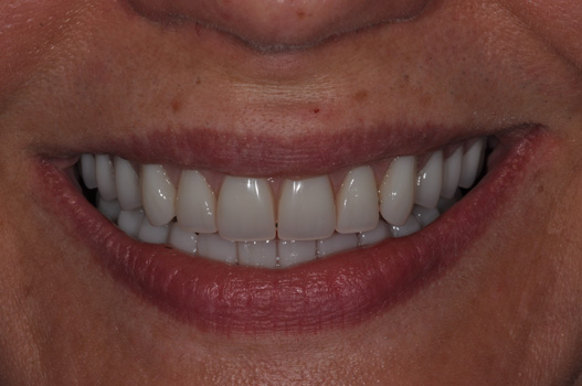 Cosmetic Denture AFTER
