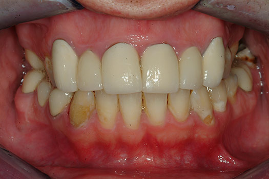 Dental Crown Failure Long Island Koeppel Dental Group