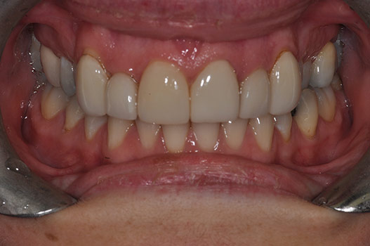 NO PREP VENEERS, FAKE LOOKING, POOR COLOR, OVER BULKED SHAPE