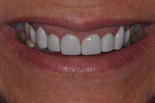 OVERBULKED VENEERS, POOR COLOR, FAKE LOOKING