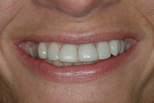 OVERBULKED VENEERS, POOR LAB, POOR RESULTS