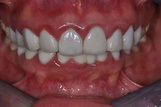 POOR PORCELAIN VENEERS CAUSING INFLAMMATION OF GUMS