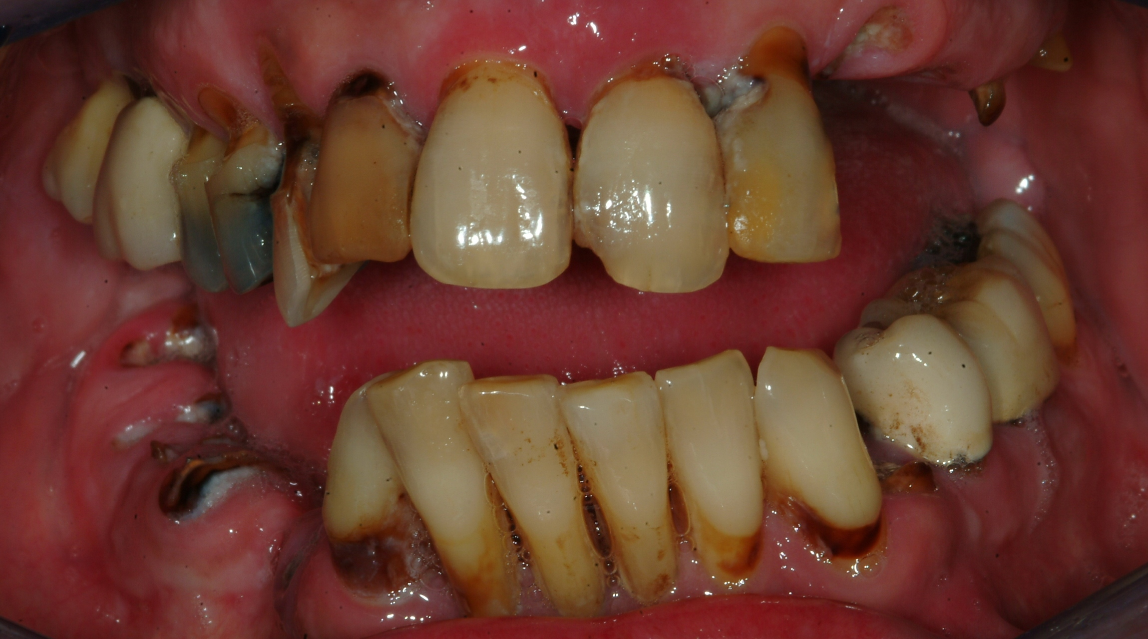 SEVERE PERIODONTAL DISEASE