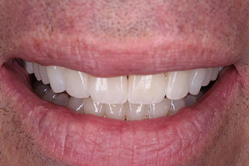 AFTER INVISALIGN AND 4 VENEERS