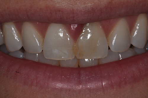 BEFORE EXTRACTION OF FRACTURED FRONT TOOTH