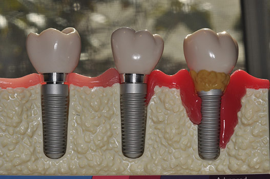 PROGRESSIVE IMPLANT FAILURE, MAINTENANCE CARE IS STILL IMPORTANT