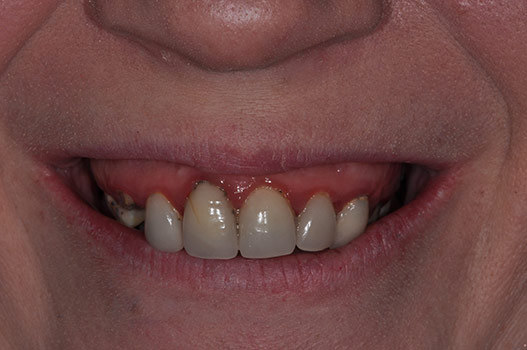 BEFORE IMPLANT LOCATOR RETAINED PALATE-LESS DENTURES