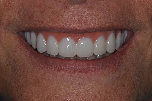 Implant Teeth in a Day