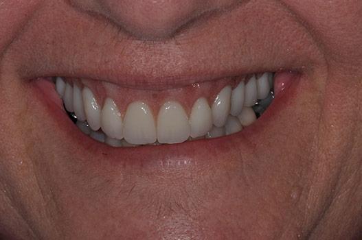 Conus Implant Denture